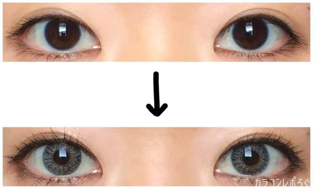 エクシクリアカラーグレー(i-lens/アイレンズ)両目ビフォーアフター