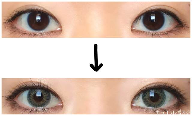 エクシクリアカラーグリーン(i-lens/アイレンズ)両目ビフォーアフター