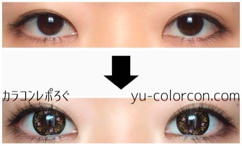 ラブリーハートブラウンi-lens/アイレンズ装着画像レポ・両目ビフォーアフター