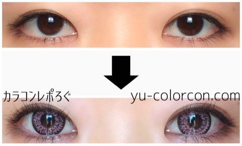 ミルキーローズ(i-lens/アイレンズ)レポ・両目ビフォーアフター