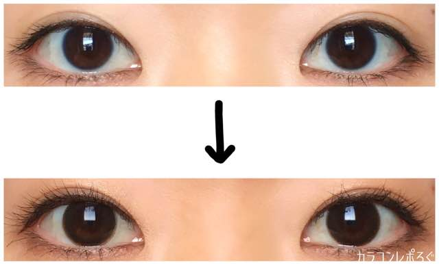 アンカフェシリコン(i-lens/アイレンズ)両目ビフォーアフター