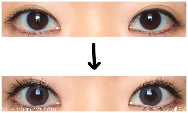 アングレーシリコン2ウィーク(i-lens/アイレンズ)両目ビフォーアフター