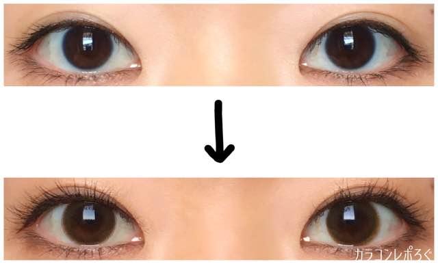 アンラテシリコン(i-lens/アイレンズ)両目ビフォーアフター