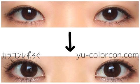 シルクシリコン(i-lens/アイレンズ)両目ビフォーアフター