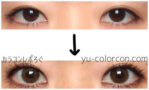 アイスディオネチョコ(i-lens/アイレンズ)両目ビフォーアフター