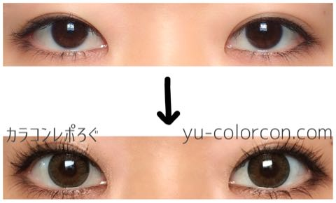 ネオ3カラーブラウン(i-lens/アイレンズ)両目ビフォーアフター