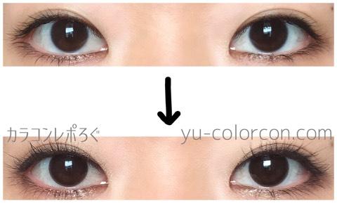 スターディチョコ(i-lens/アイレンズ)両目ビフォーアフター