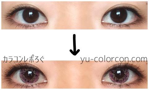 バニラスターピンク(i-lens/アイレンズ)両目ビフォーアフター