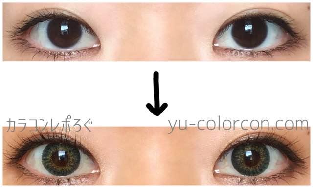 オーチョシリコングリーン/アイレンズi-lens両目ビフォーアフター