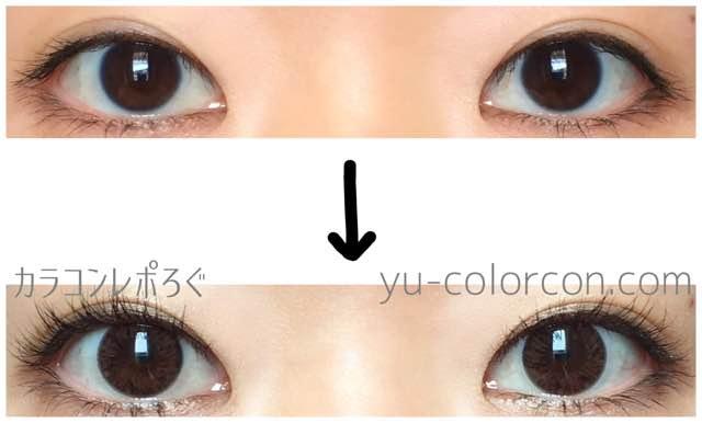 アイブリングランシリコンチョコ(i-lens/アイレンズ)両目ビフォーアフター