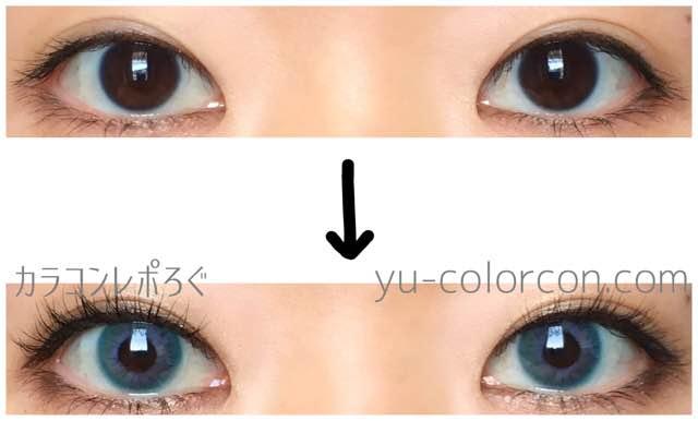 ダナレインボーブルー(i-lens/アイレンズ)両目ビフォーアフター