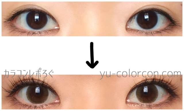 アイドルピュアブラウン(i-lens/アイレンズ)両目ビフォーアフター