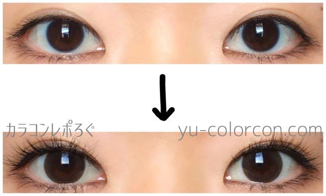 シュガーショコラチョコ(i-lens/アイレンズ)両目ビフォーアフター